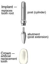 Implant Diagram | Medina OH