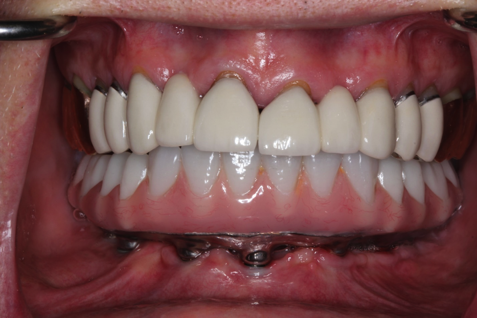 Full Mouth Crowns | Akron Prosthodontist