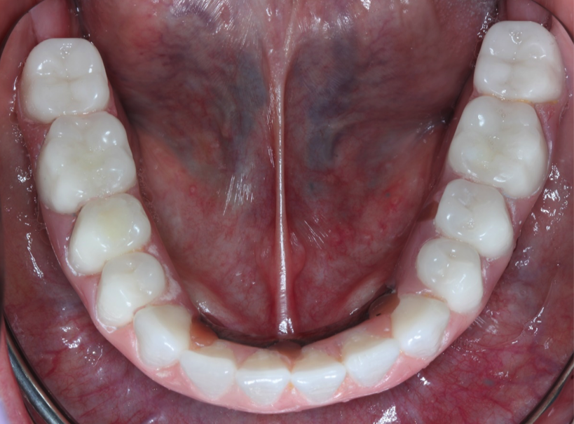patient with dental bridge | Medina Prosthodontist