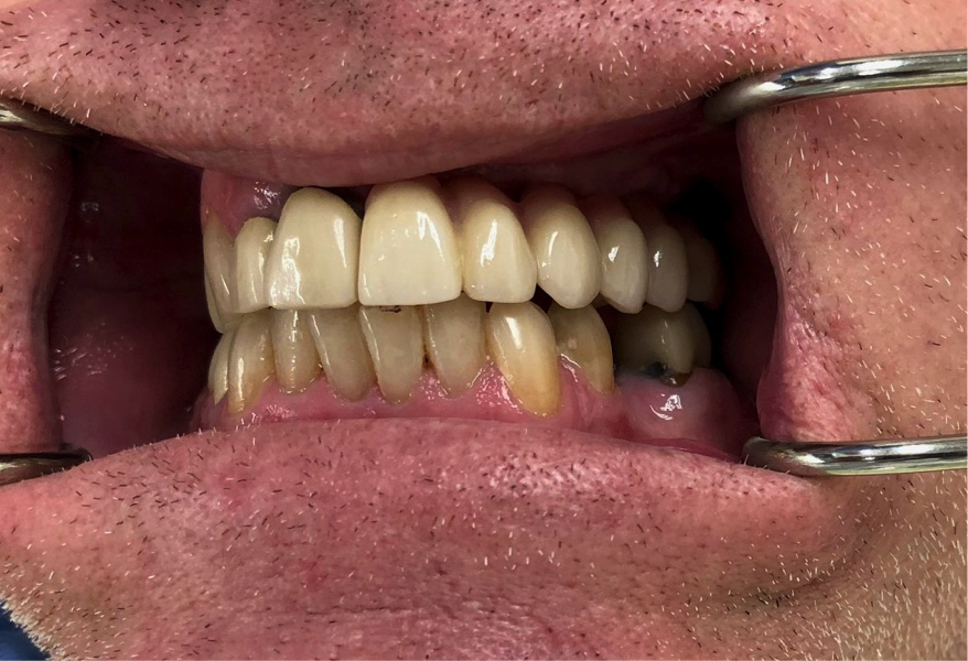 patient with implants | Medina oh prosthodontist
