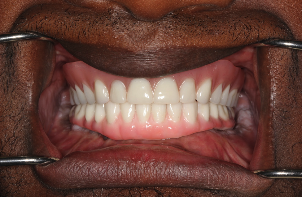 full mouth reconstruction | Medina OH Prosthodontist