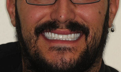 man with new teeth | prosthodontist medina oh