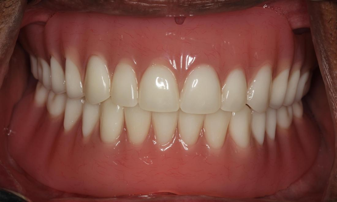 patient with new implant dentures medina oh