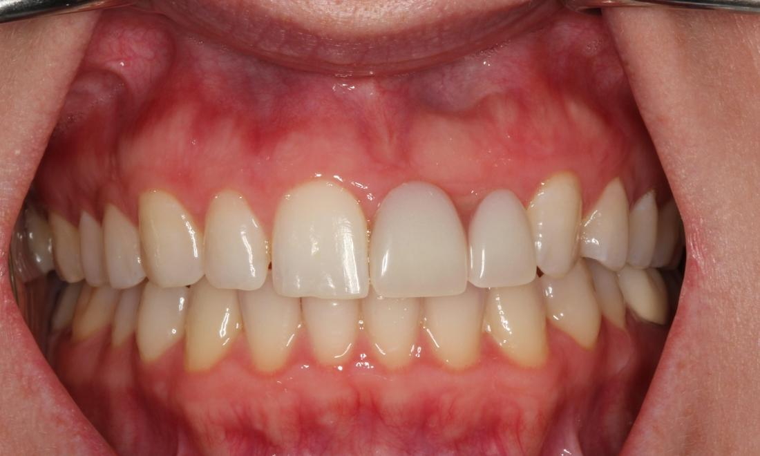 Patient results after partial denture | medina oh