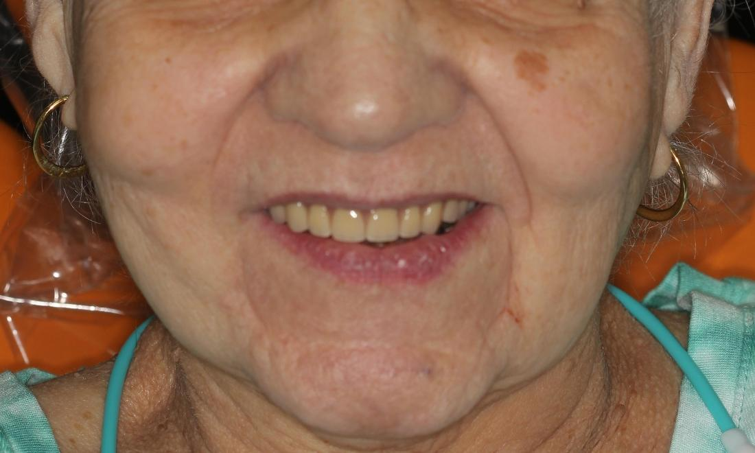 With New Partial Overdenture Medina OH