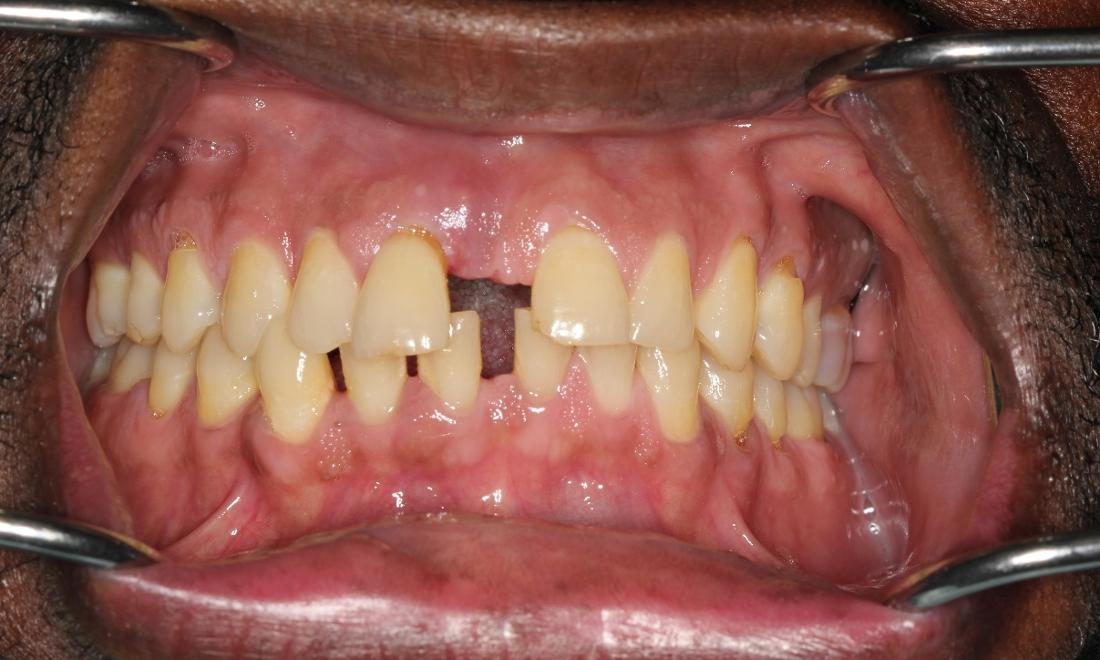 Patient with Tooth Gaps | Medina OH Prosthodontist