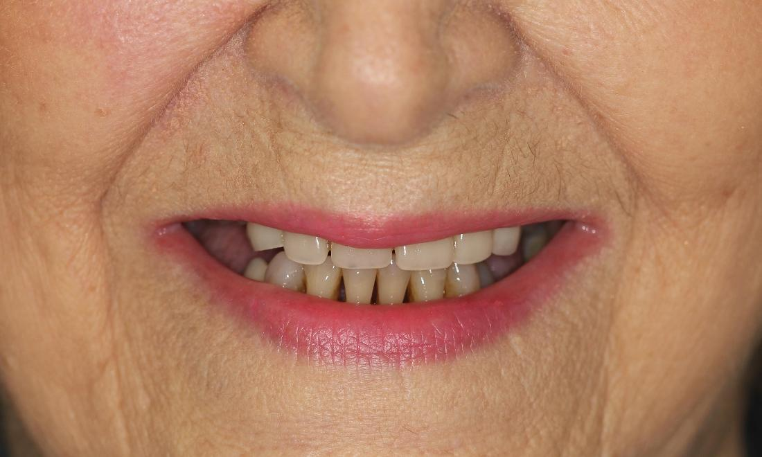 Patient needing new dentures | Medina OH Prosthodontist