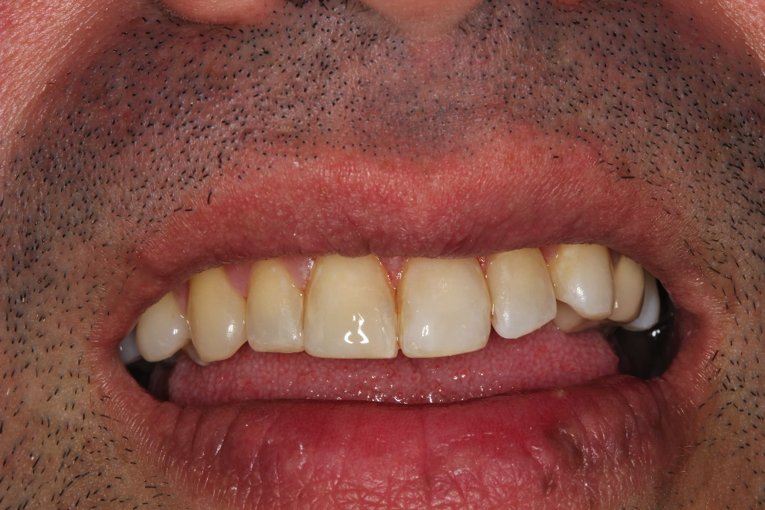Direct-Bonding-Veneers-After-Image