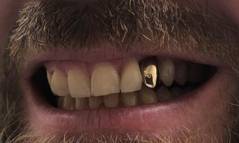 Gold-Tooth-After-Image