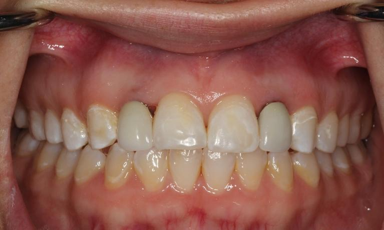 Implant-Crowns-Before-my-Wedding-After-Image
