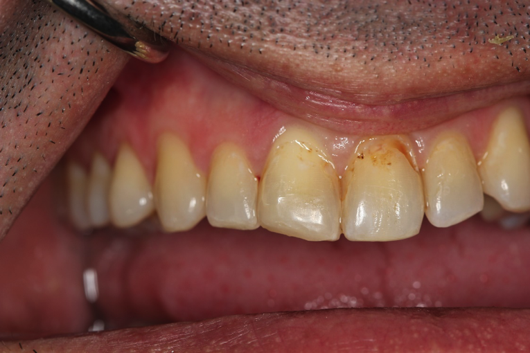 Direct-Bonding-Veneers-Before-Image