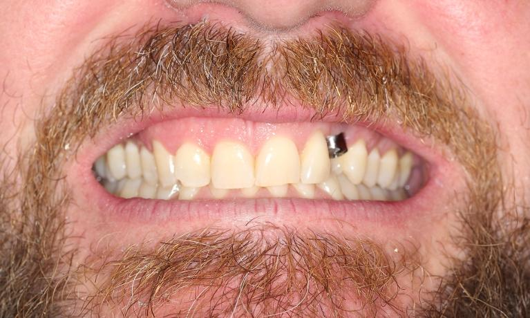 Gold-Tooth-Before-Image