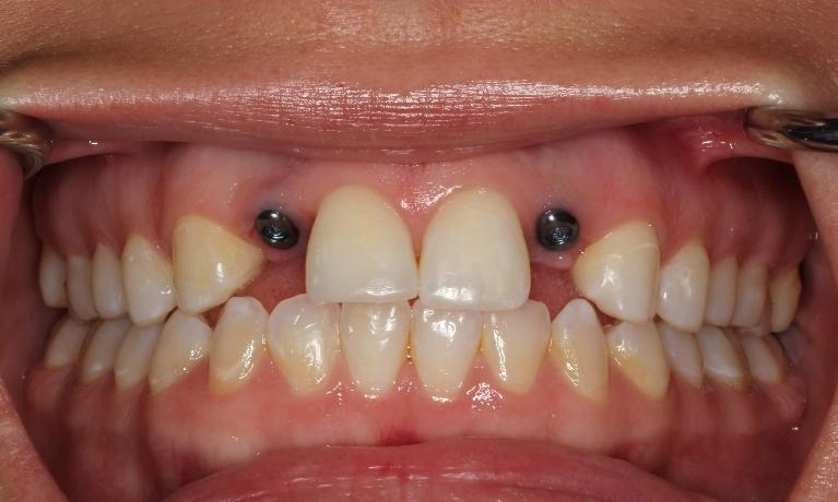 Implant-Crowns-Before-my-Wedding-Before-Image