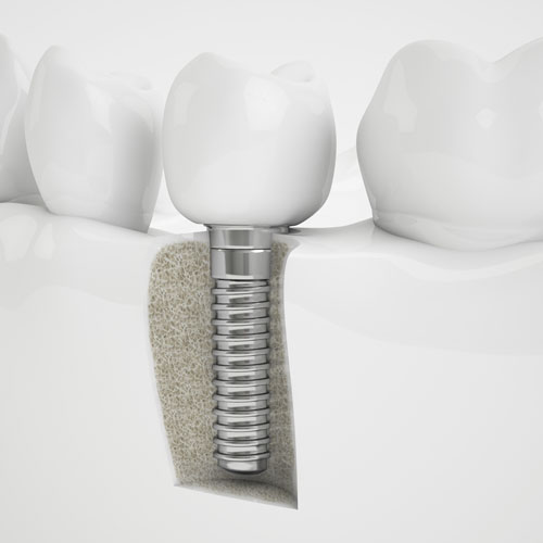 Frontier Dental | Dental Implants