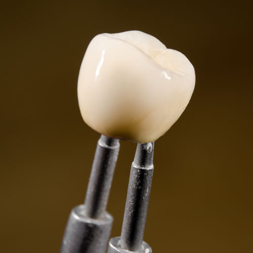 Frontier Dental | Crowns and Bridges
